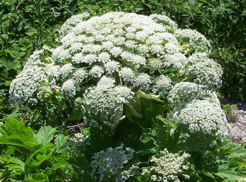 Giant Hogweed can cause severe burns and blisters
