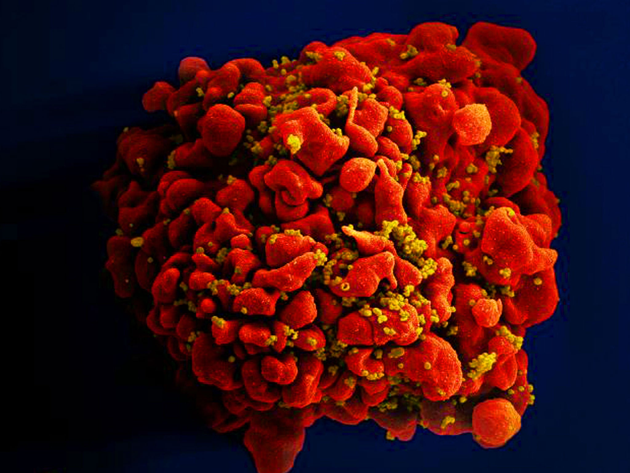 Scientists just created an antibody that attacks 99 per cent of HIV strains