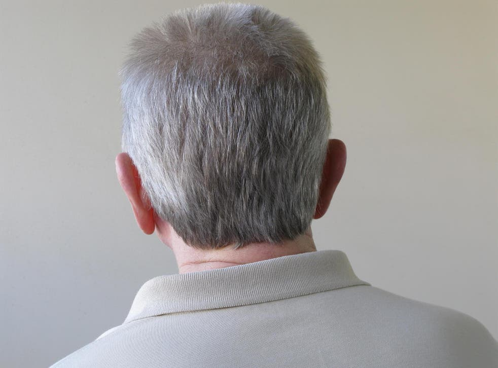 If confirmed, a new strain of the drug could be developed to treat grey hair