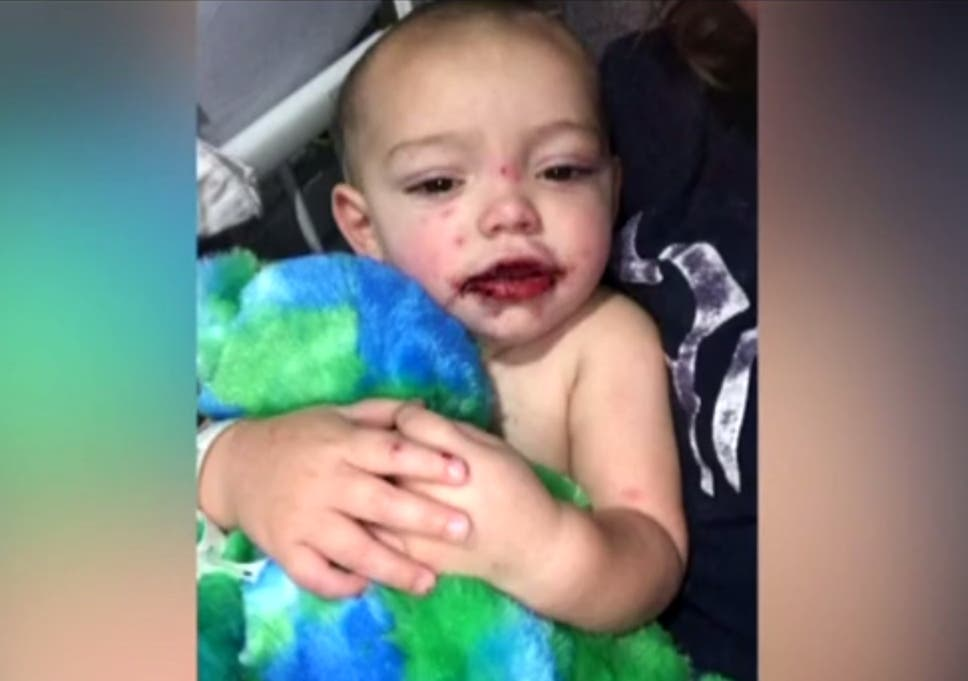 Mother warns of dangers of cold sores after her child gets herpes