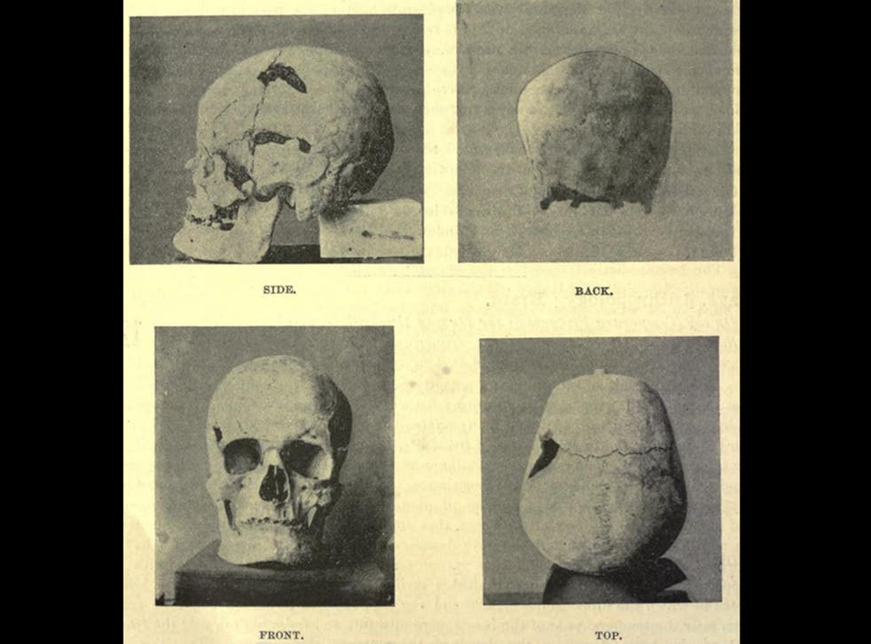 Images from 1901 of the skull that is believed to belong to Pharaoh Sanakht