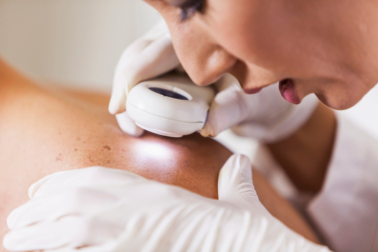 Skin cancers can not be safely ruled out with a visual exam alone, review warns