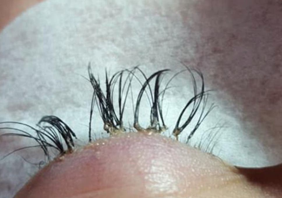 a5d42d1cfd0 The woman's eyelashes were so damaged that they began to fall out  (Facebook: Emmaculate