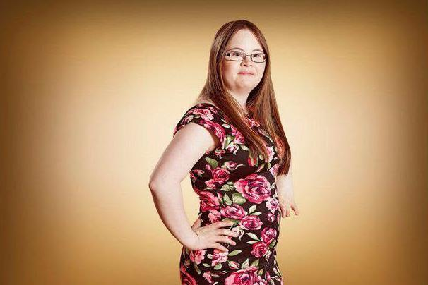 young-down-syndrome-women