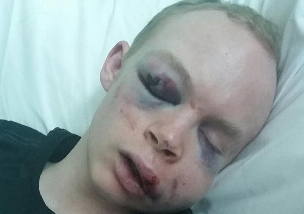 Police release image of Londoner beaten up in 'brutal and unprovoked