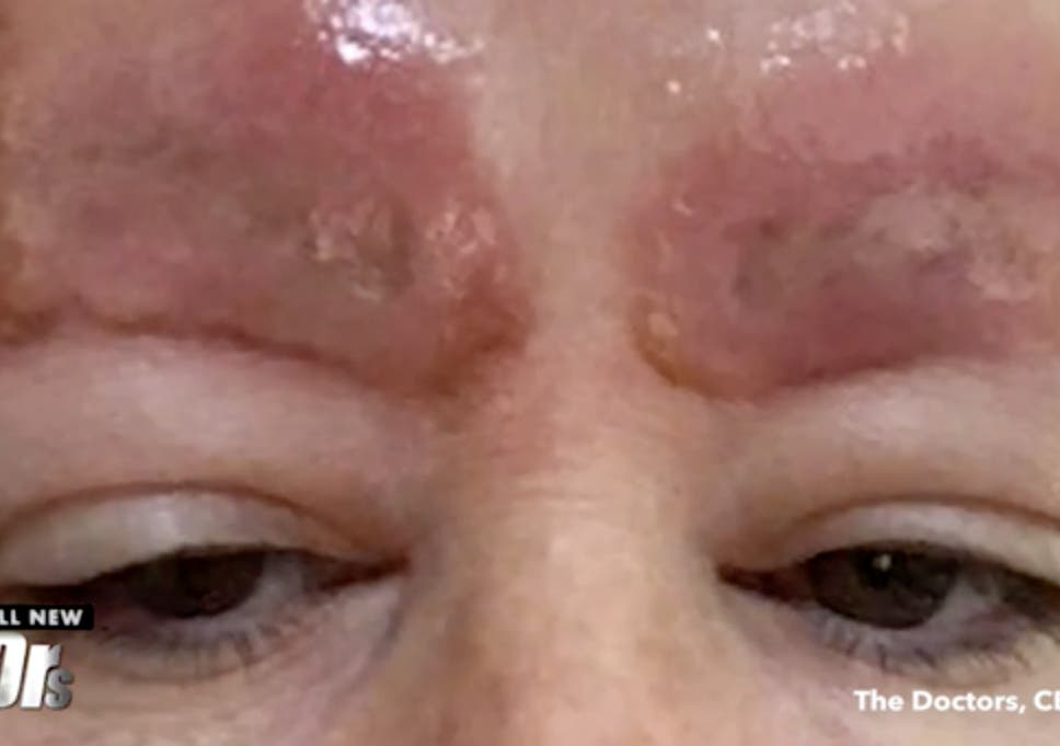 Microblading warning after semi-permanent tattoo caused