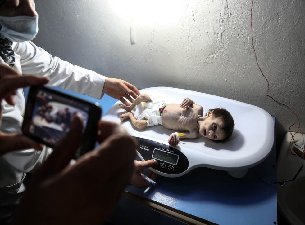 Acutely malnourished Samar Dofdaa was taken to a clinic by her parents in east Ghouta in October, but died the next day (AFP/Getty)