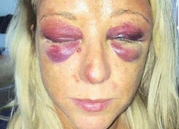 mother whose bareknuckle boxer boyfriend beat her as her