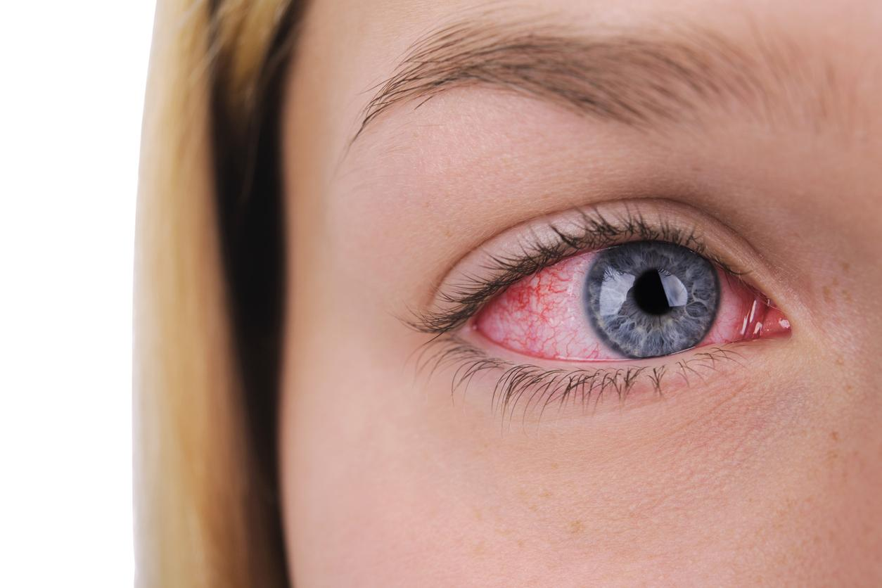 Ocular Syphilis Outbreak The Inflammatory Eye Disease That Can Make You Go Blind Is On Rise