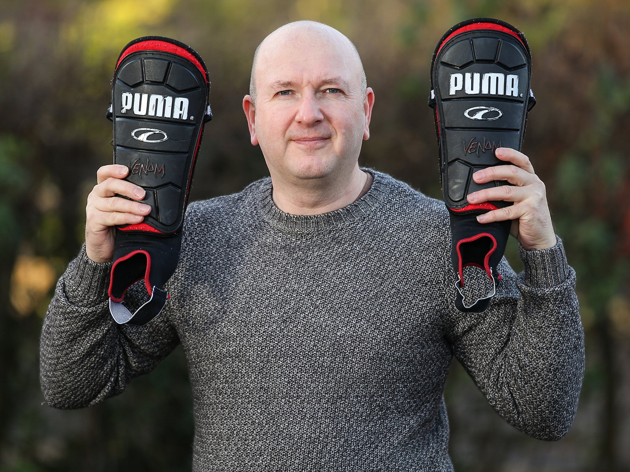 Footballer saved from amputation after car crash because he wearing shinpads