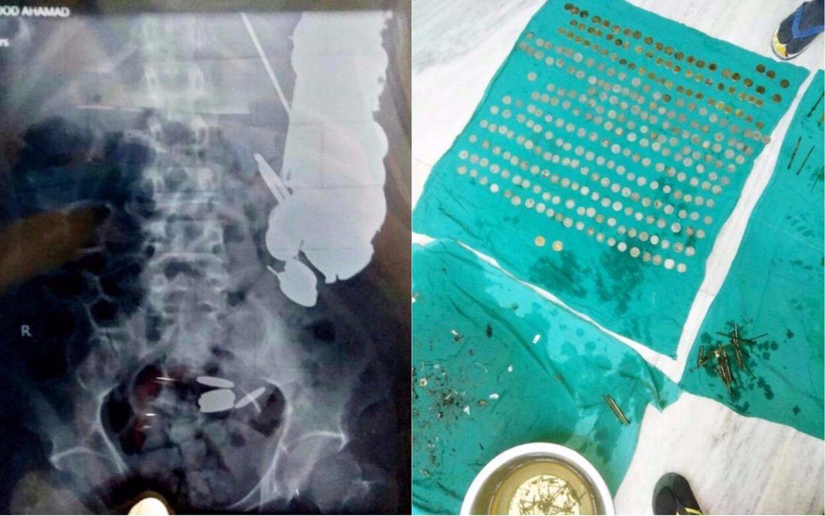 Image result for Doctors at Sanjay Gandhi Hospital in Madhya Pradesh, India, were stunned when X-rays of a patient who had suffered severe stomach pain showed that he had more than two hundred coins, a hundred nails and other metal objects inside. . In total, the doctors had to remove about seven kilos of metal from his body.
