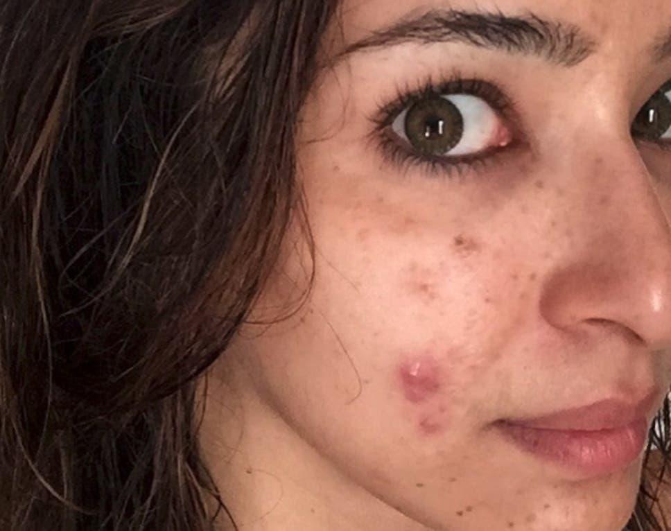 Dermatologist Uploads Instagram Photo Of Her Adult Acne To Break