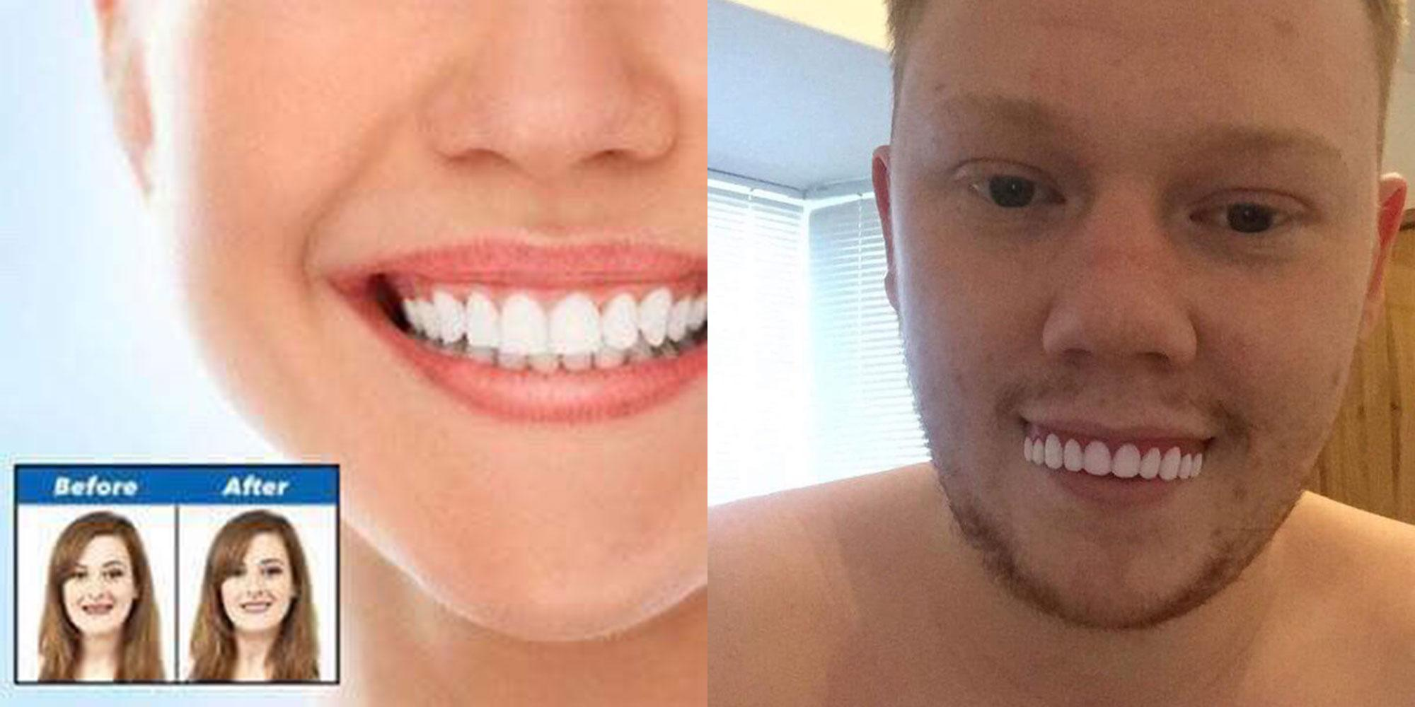 Man Orders 163 42 Veneers Online And Instantly Finds Out Why