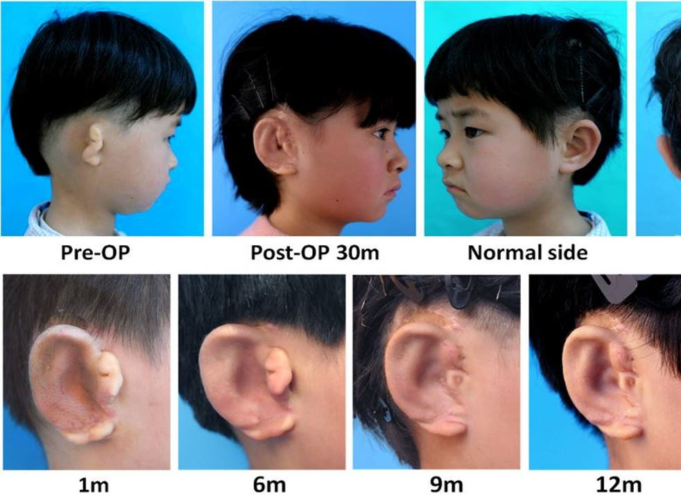 Cartilage cells taken from the recipient's unaffected ear are grown on an artificial mould before it is grafted into place