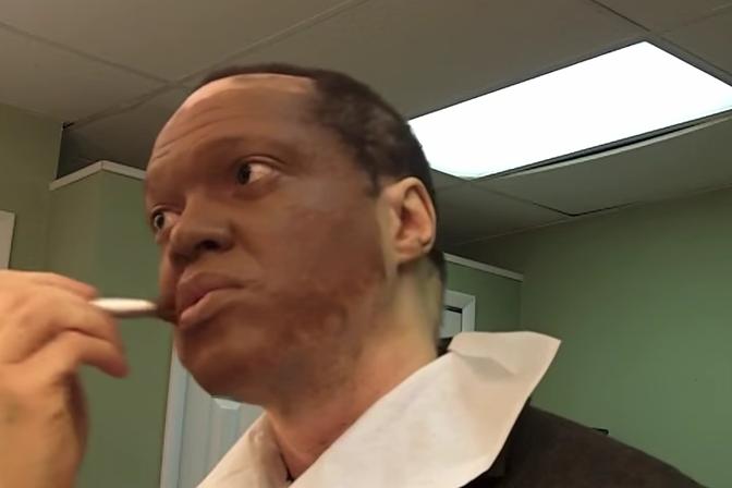 vitiligo dating uk php okvir za pronalaženje web mjesta