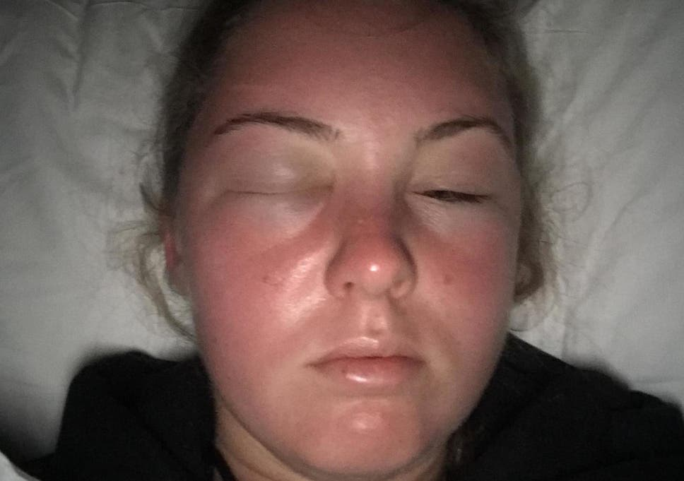 Sun poisoning' causes student's face to swell up uncontrollably