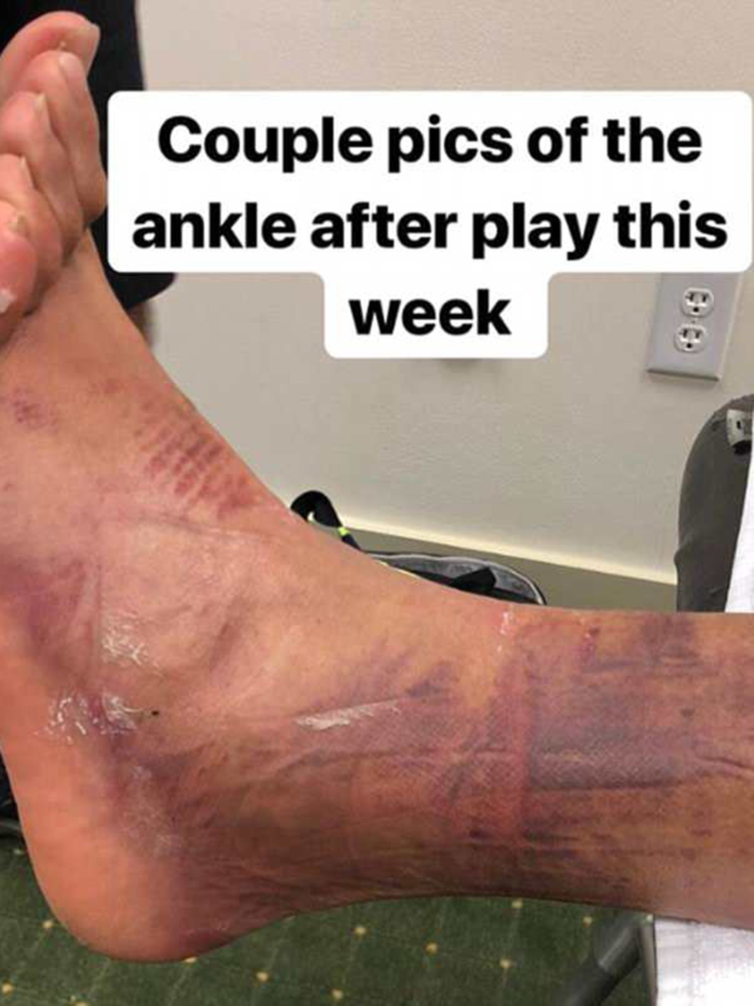 Tony Finau reveals injuries caused by dislocated ankle at The