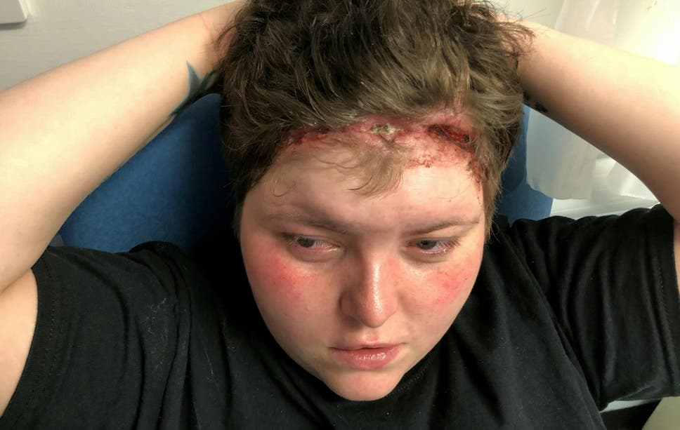 Woman With Wound From Weave Sewn Too Tightly Fears She Will Be