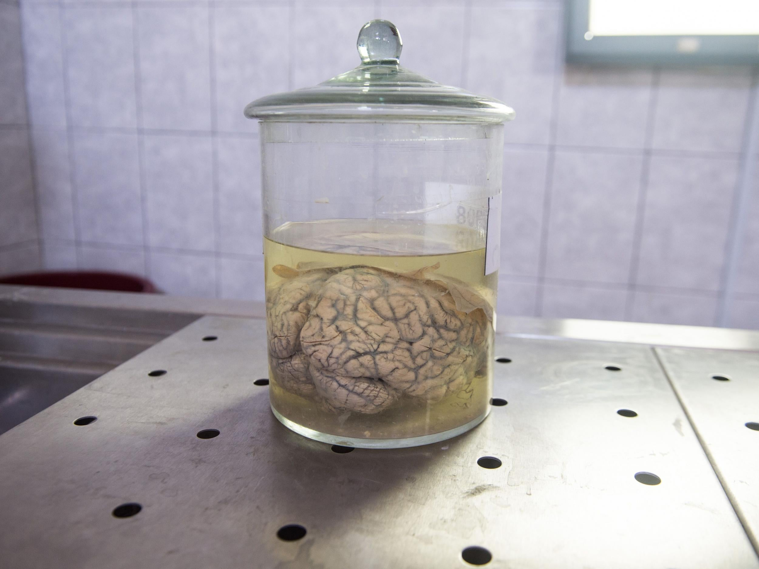 Pig brains kept alive outside bodies for first time could have major implications for humans