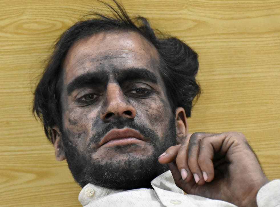 A worker who survived after a coal mine explosion rests at a hospital in Quetta, Pakistan