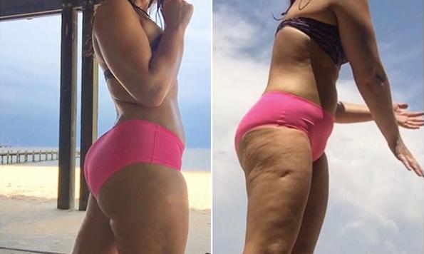 Få bort celluliter med träning