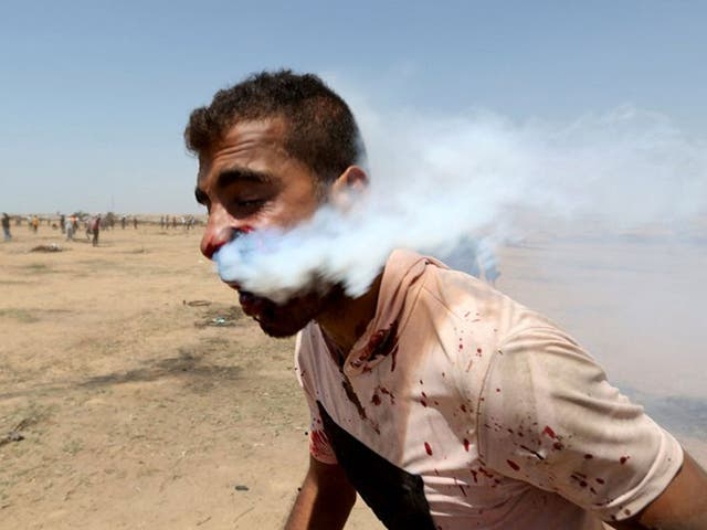 A wounded Palestinian demonstrator, Haitham Abu Sabla, 23, is hit in the face with a tear gas canister fired by Israeli troops