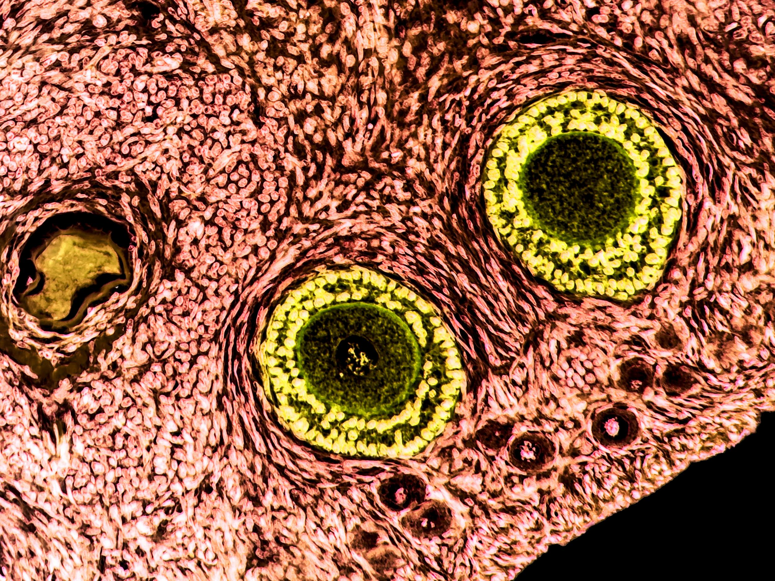 Artificial Ovary Could Allow Women To Become Mothers After Cancer