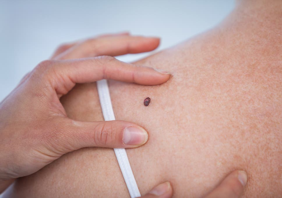 what is melanoma and what are the early signs of the skin cancer