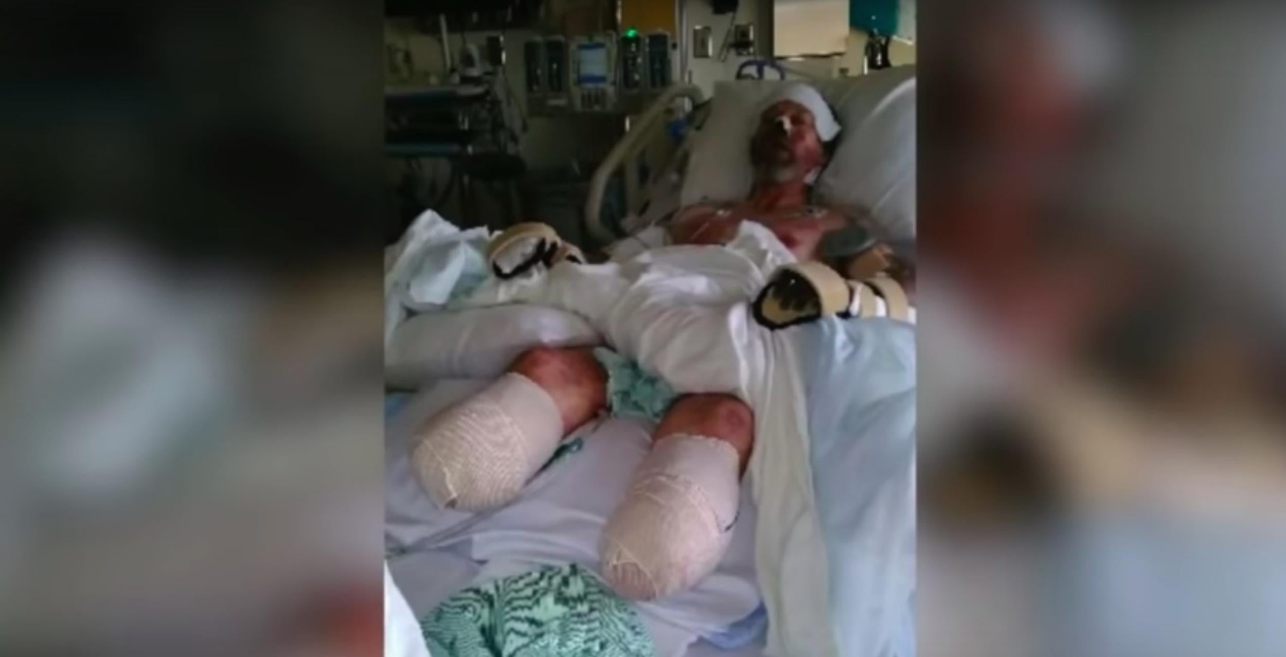 Man has limbs amputated after being licked by a dog | The Independent
