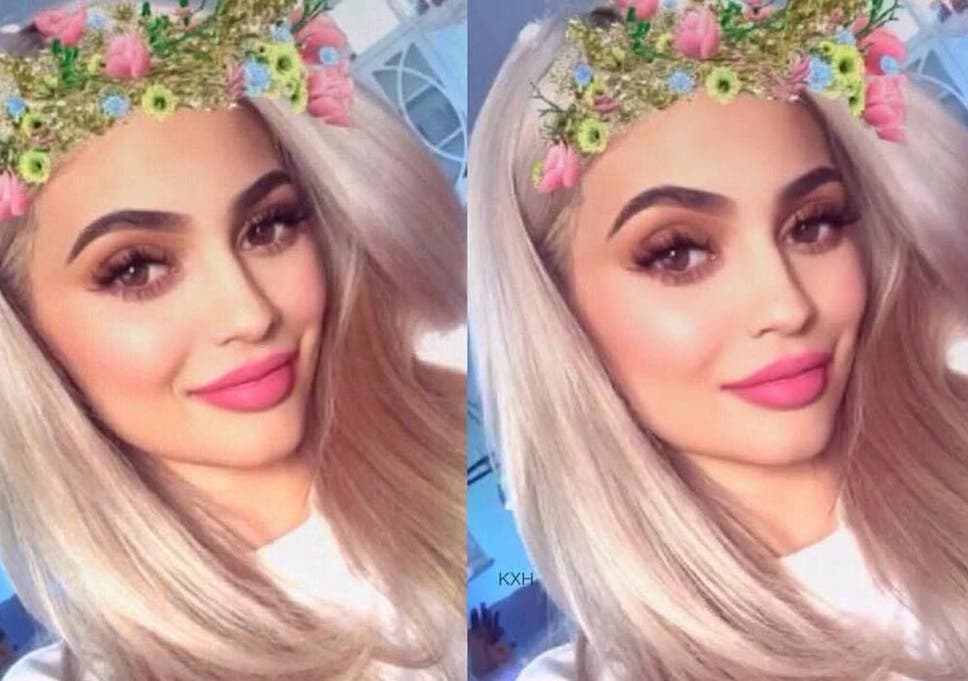 Snapchat dysmorphia\': Teenagers are getting plastic surgery to look ...