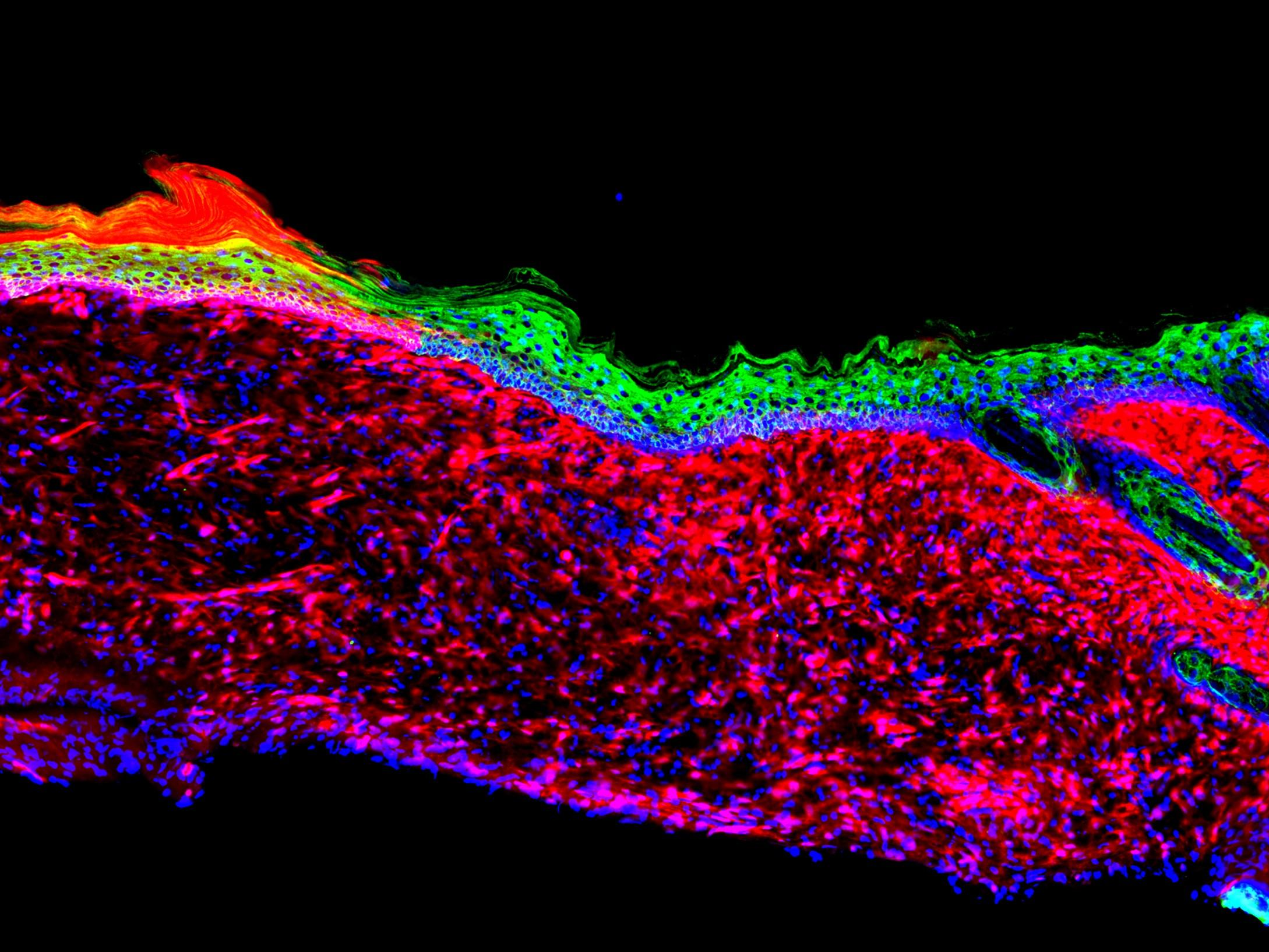 Open wounds converted into healthy skin in scientific first