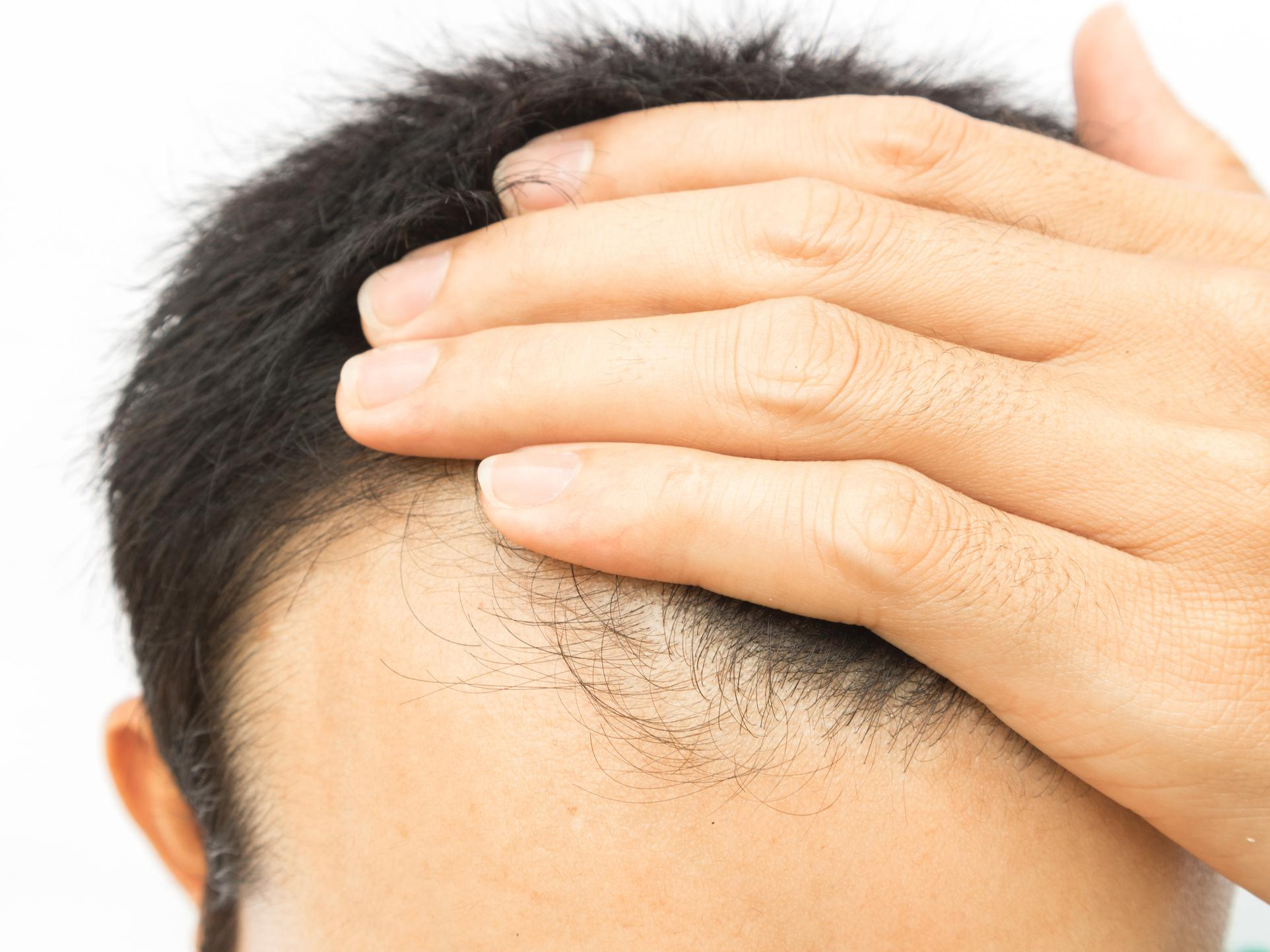Hope for baldness cure as scientists trigger hair growth with