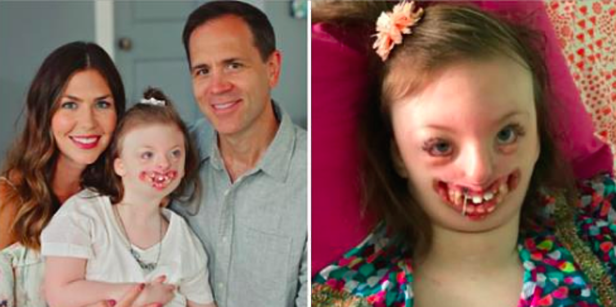 This Mum Found Out Trolls Were Using Her Disabled Daughter
