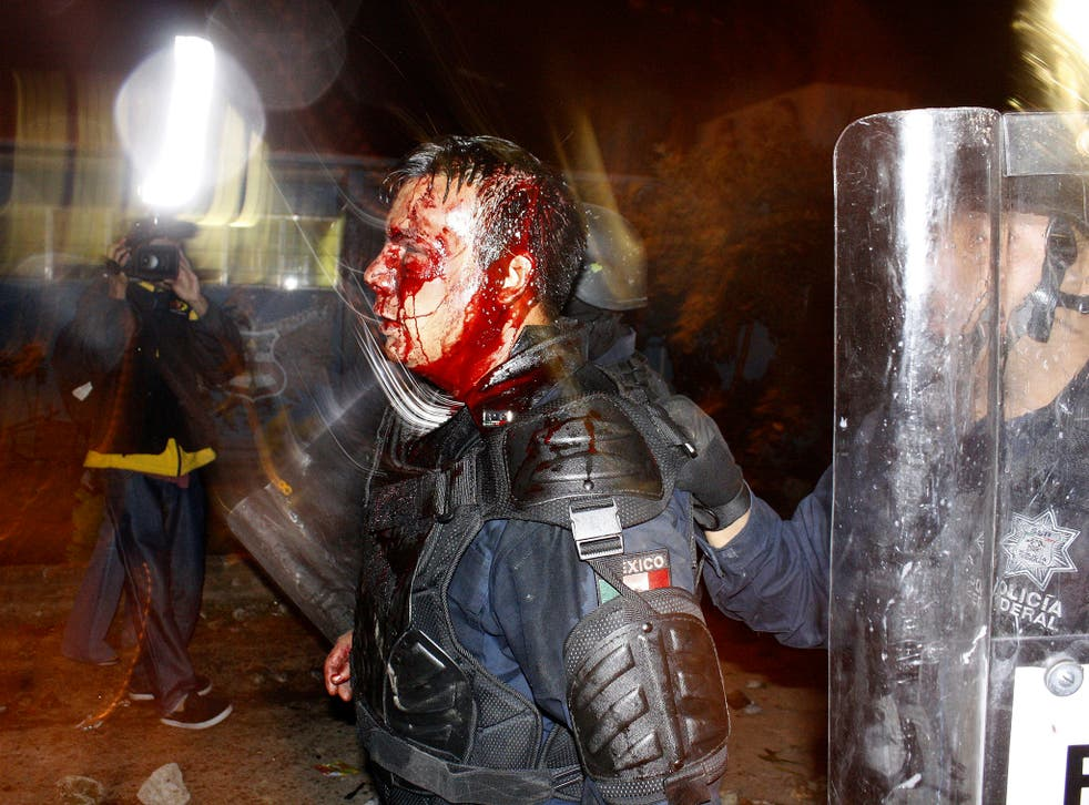 This photo shows a Mexican police officer who was injured in 2012 during a riot involving students at a school – but was used to spread fear about the so-called migrant caravan heading towards the US