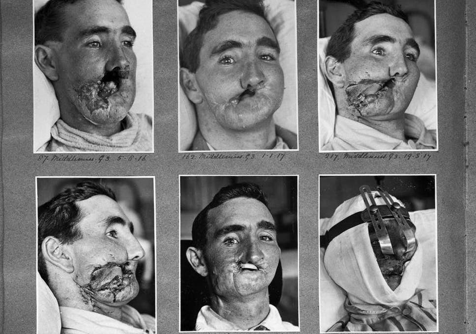 Reconstructive surgery carried out between 1916 and 1918