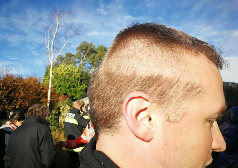 Firefighter Responds To Emergency With Half His Head Shaved After