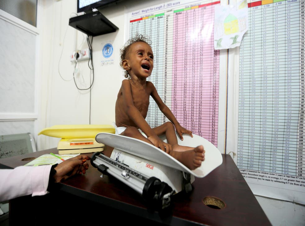 Malnourished Ferial Elias, 2, cries as she is being weighed at a malnutrition treatment ward at al-Thawra hospital in Hodeidah, Yemen