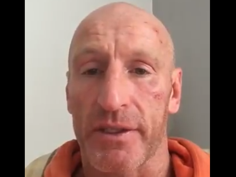 Gareth Thomas alleges homophobic attack in video message showing cuts and bruises