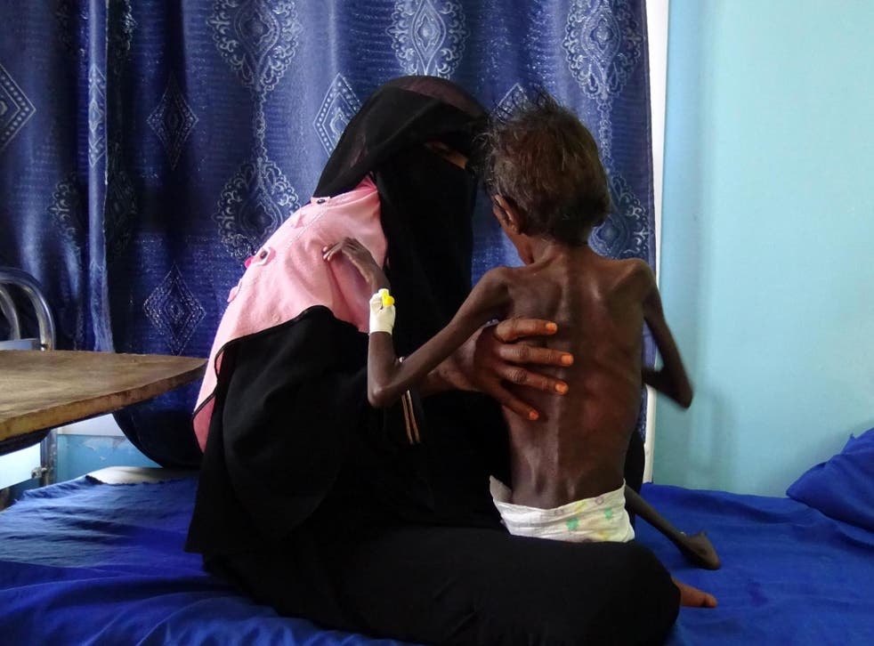 Yemeni mother Nadia Nahari holding her five-year-old son Abdelrahman Manhash, who is suffering from severe malnutrition and weighing 5kg, as she sits on a bed in a hospital in Hodeidah