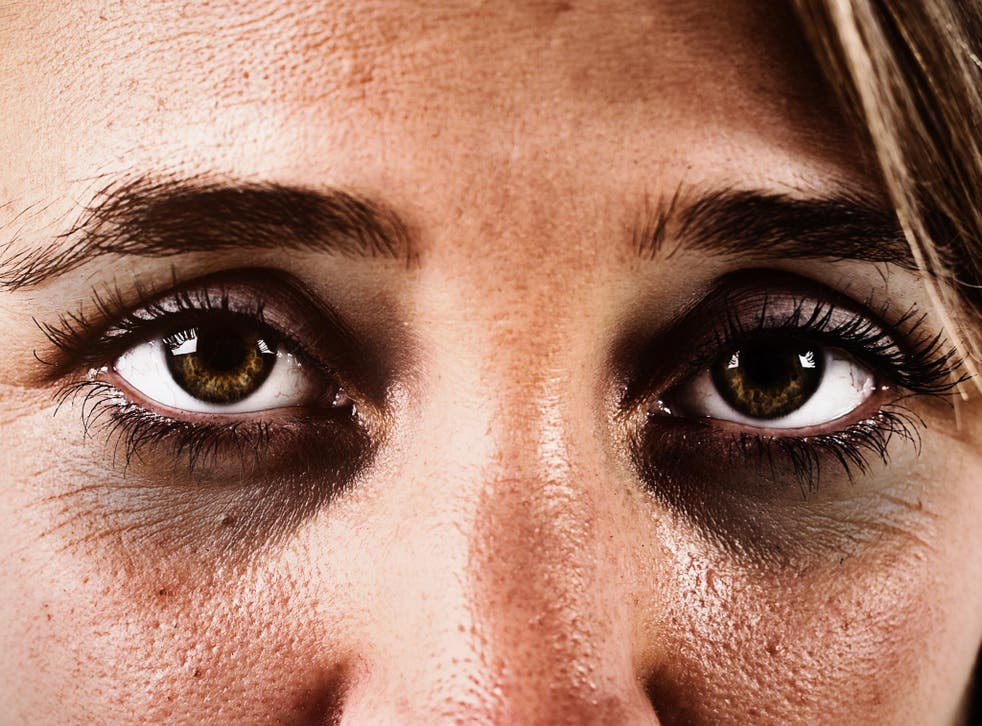 Dark eyes could impede your mental health in winter