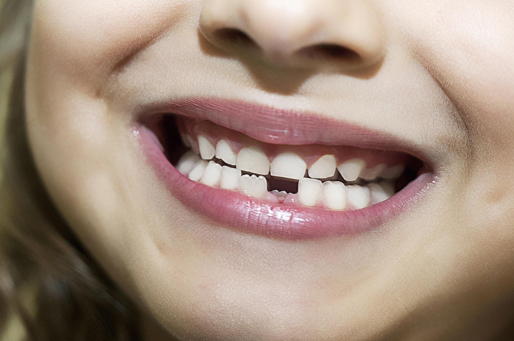 Mental health problems can be diagnosed using children's teeth, scientists suggest