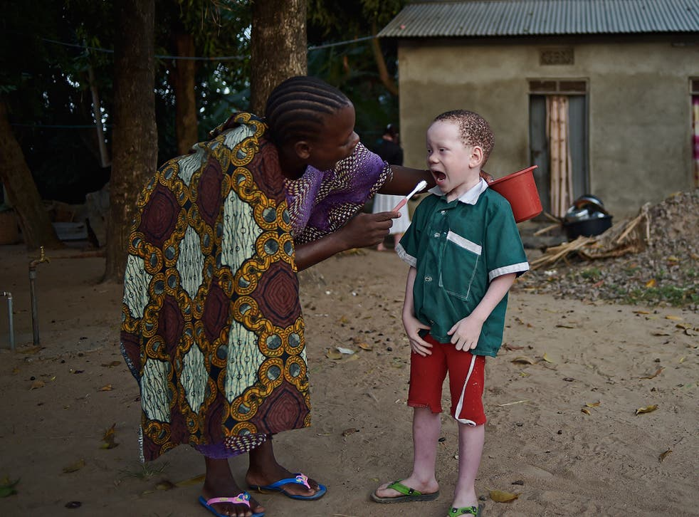 People with albinism are often targeted under the belief their body parts are particularly potent in rituals