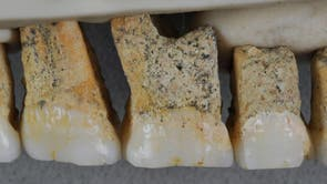 The right upper teeth of the newly discovered species Homo Luzonensis