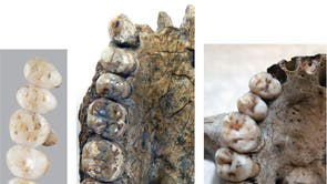 The teeth of newly discovered species Homo Luzonensis (L) are compared with those of the Homo Erectus