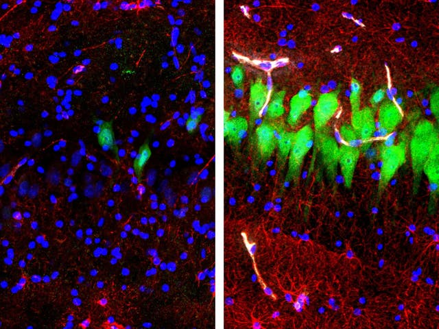 Immunofluorescent stains for neurons and cell nuclei in the brain: untreated for 10 hours after death (left) and subjected to perfusion with the BrainEx technology (right)
