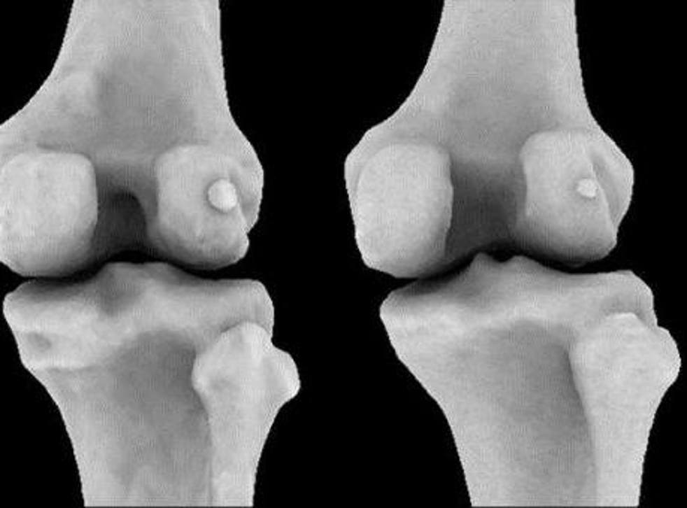 Fabellae (small knee bones behind the knee cap) are twice as common in people with osteoarthritis of the knee