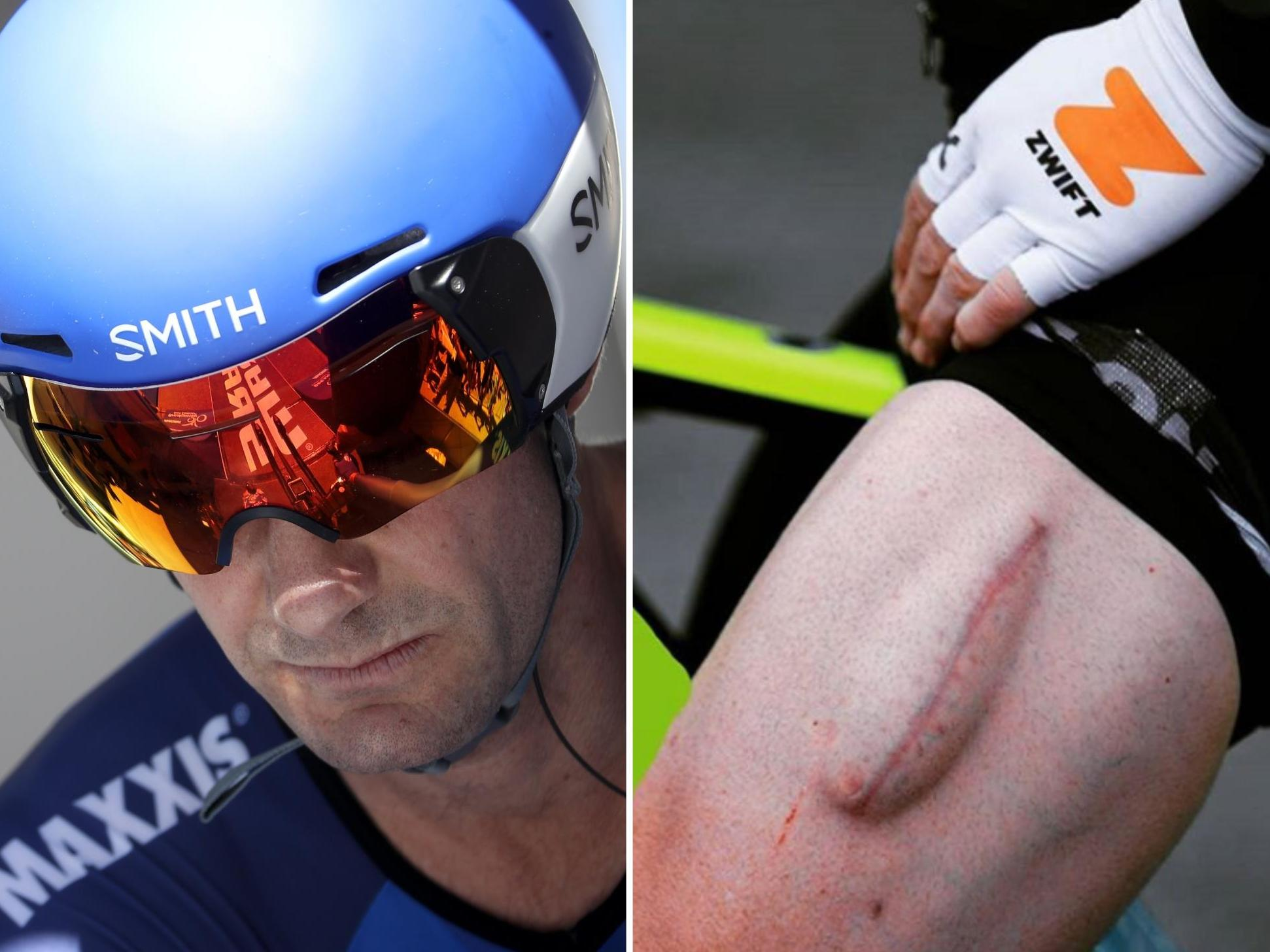 Former Team Sky cyclist Greg Henderson 'grows new quad muscle' after