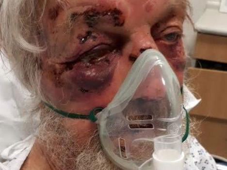 Man hunted over 'brutal attack' on pensioner who complained about his driving in London street