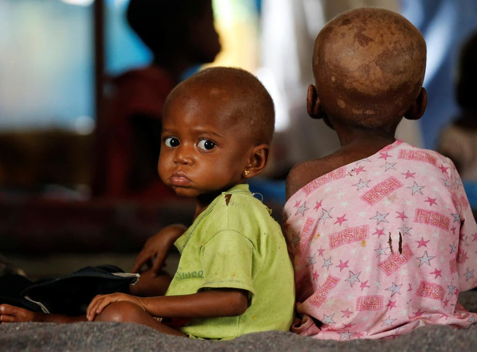 Ntumbabu Kalubi, 4, and his sister Ntumba Kalubi, 2, internally displaced and severely acute malnourished children wait to receive medical attention at the Tshiamala general referral hospital of Mwene Ditu in Kasai Oriental Province in the Democratic Republic of Congo, on 15 March 2018.