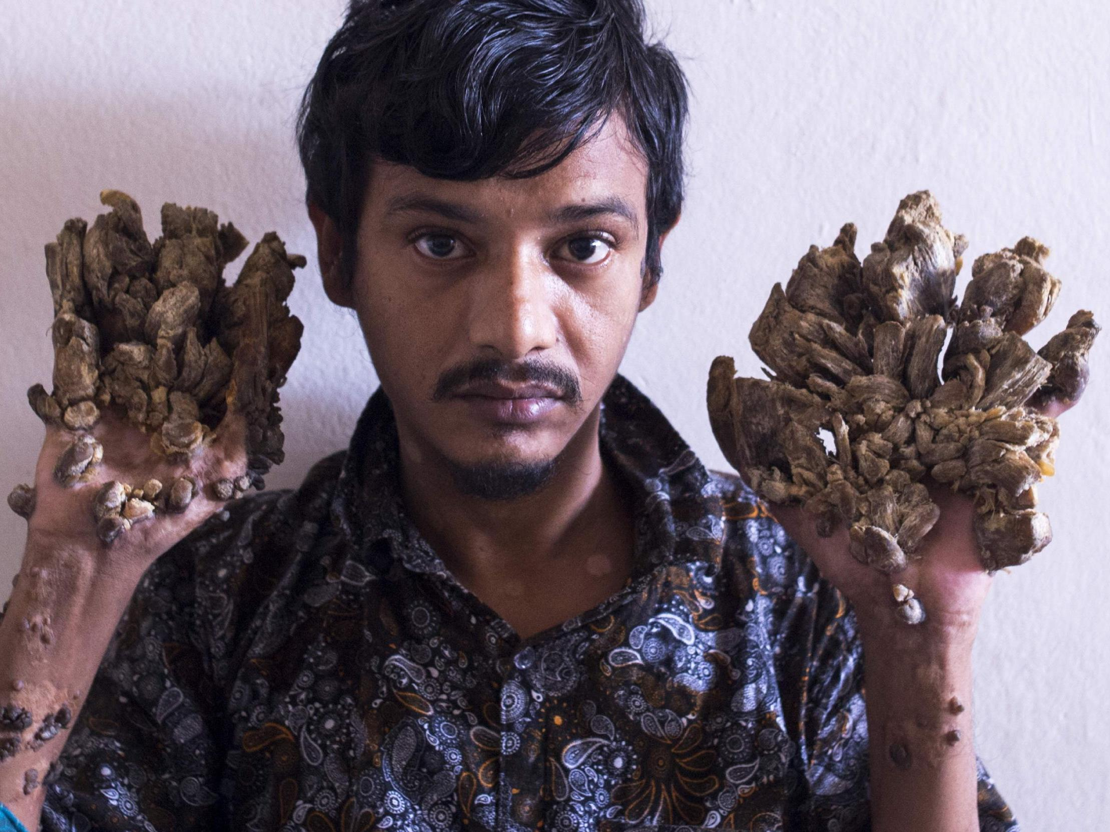 Tree Man of Bangladesh: Father with bark-like growths says he wants hands amputating